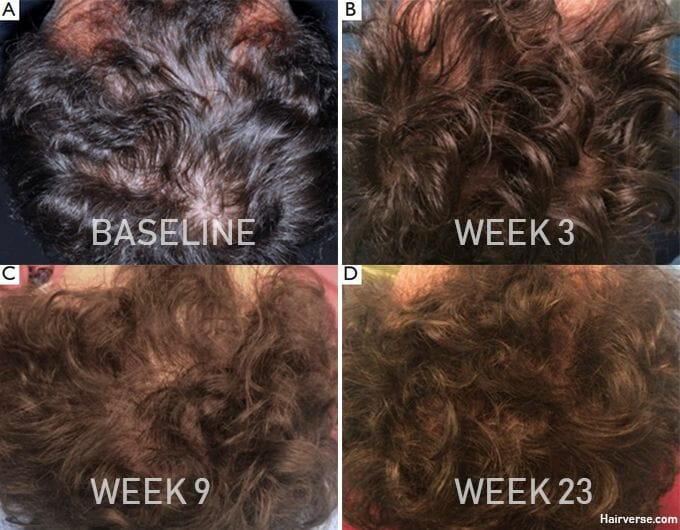 man's progress after stem cell therapy for hair loss