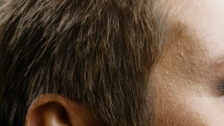 Prostaglandins for Hair Growth: A Potential Hair Loss Treatment?